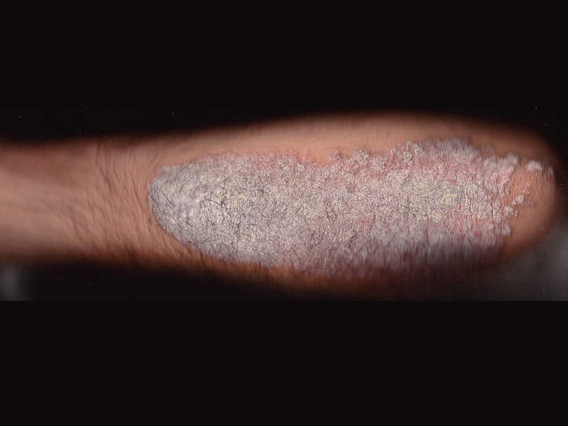 The most common symptom of plaque psoriasis is a rash on the skin, nails or joints, which appears as red or flaky white scales on skin. Image courtesy of MediaJet.