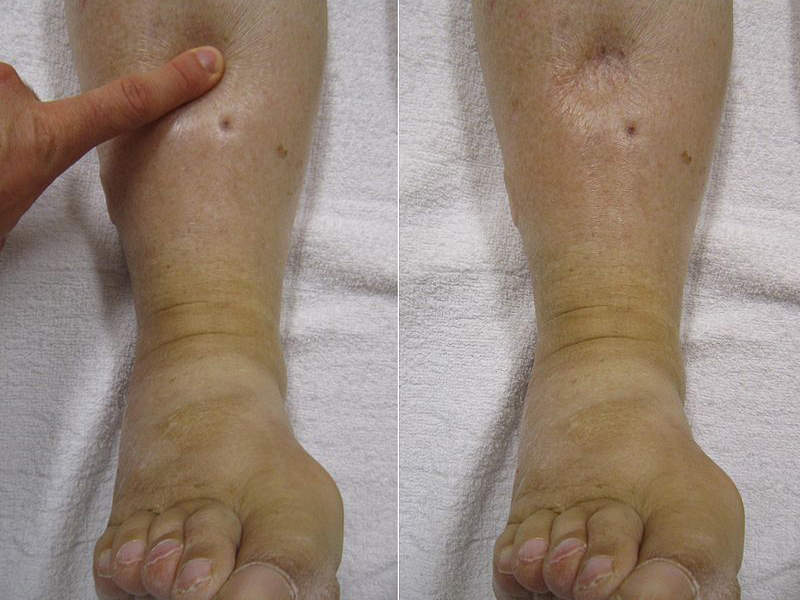 The most common adverse reactions of Lokelma's usage were oedema-related events. Image courtesy of James Heilman.