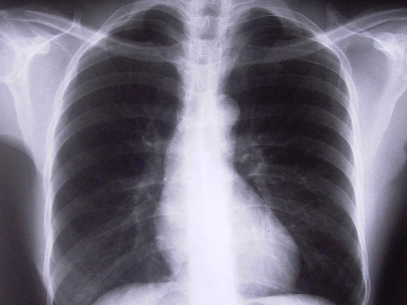 COPD is a chronic inflammatory lung condition that causes difficulty in breathing and predisposition to exacerbations and serious illness. Image courtesy of FreeImages.com/Adam Ciesielski.