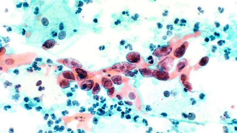 Tisotumab vedotin shows promise in treating six cancer types