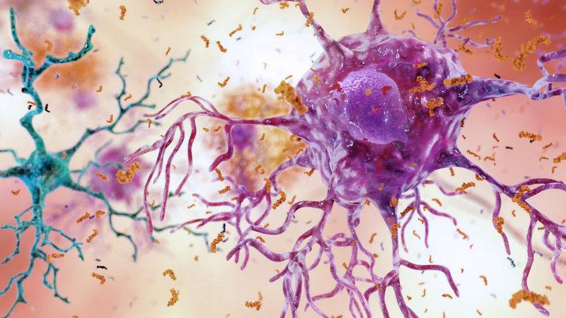 Alzheimer's trials