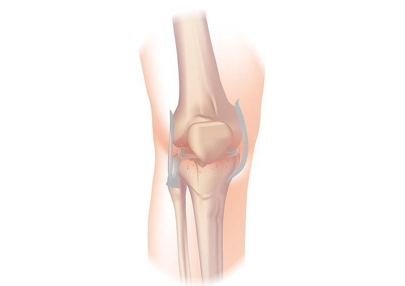 Paradigm knee osteoarthritis study meets secondary endpoints