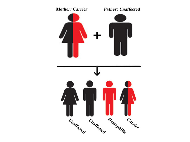 Haemophilia A is a genetic bleeding disorder that mostly affects males. Image courtesy of pheezics.