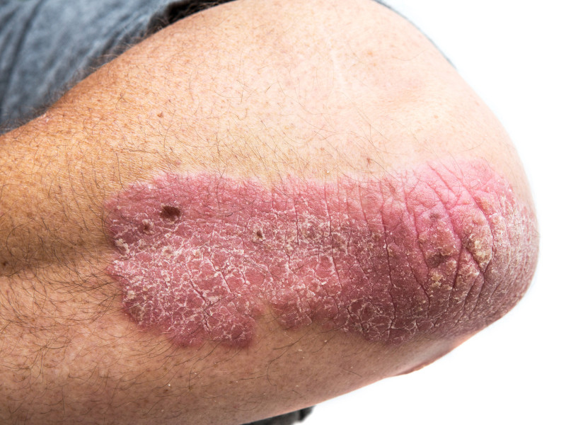 Plaque psoriasis is an inflammatory skin disorder that forms dry, itchy, and often painful red patches of dead skin cells on body. Image courtesy of AbbVie.