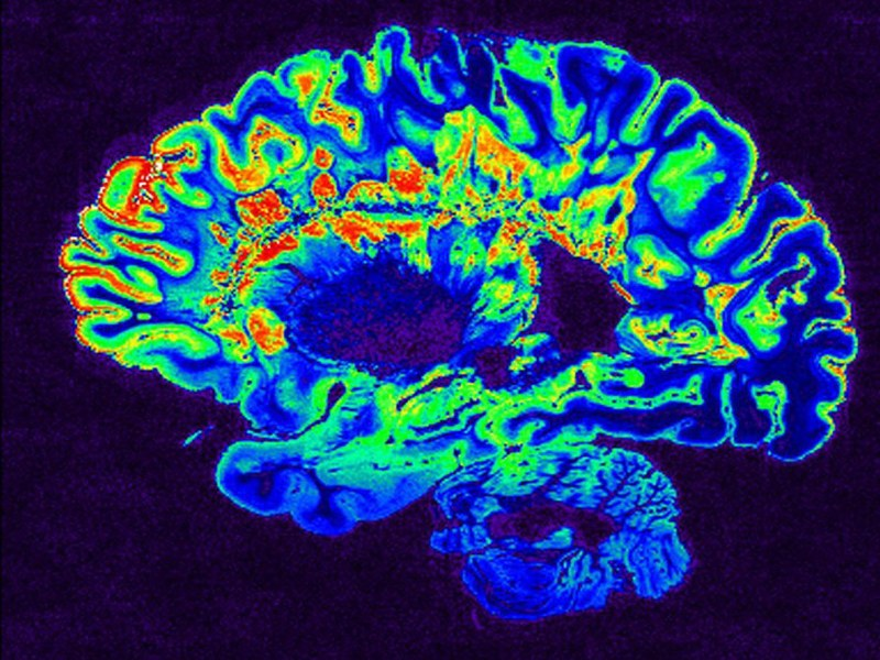 Sanofi begins dosing in Phase IIb trial for multiple sclerosis