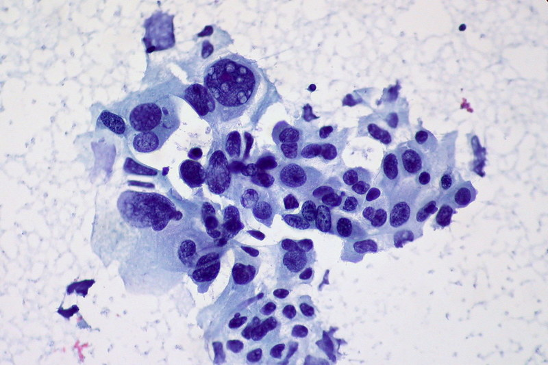 Transgene closes enrolment in Phase II lung cancer trial