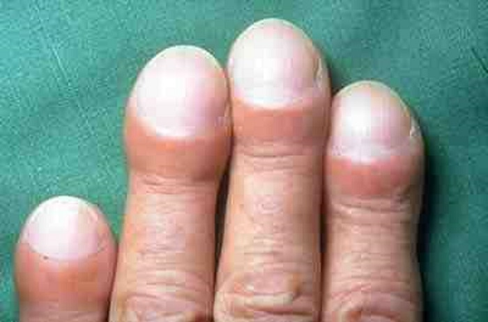 Clubbing of fingers