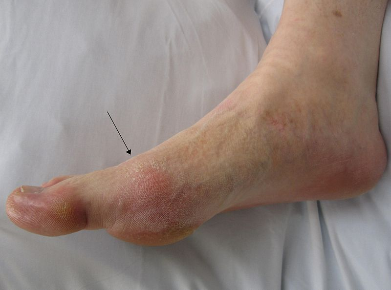 Gout presenting in the metatarsal-phalangeal joint of the big toe.