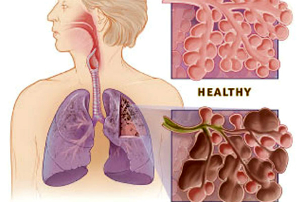 Chronic Obstructive Pulmonary Disease (COPD) is a lung disease