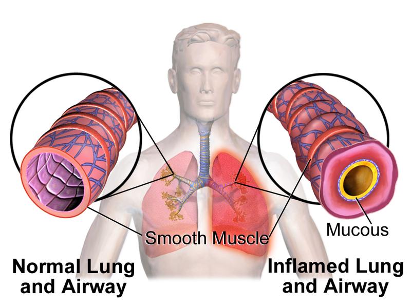 Blausen 0620 Lungs NormalvsInflamedAirway