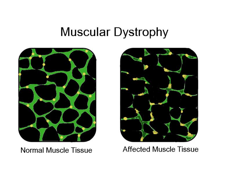 MuscularDystrophy