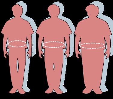 Obesity-waist circumference