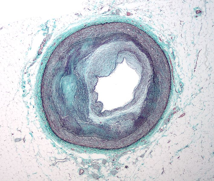 RCA atherosclerosis