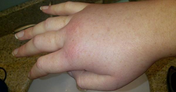 Ruconest hae treatment