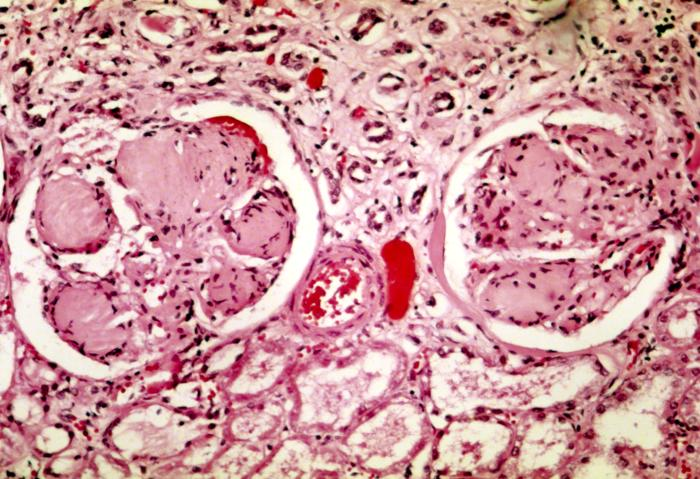 nodular glomerulosclerosis